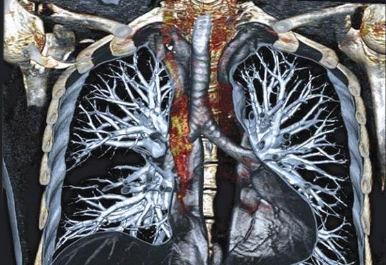 Фото: снимок КТ органов грудной клетки