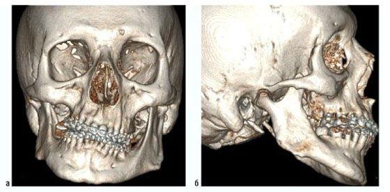 фото КТ верхней и нижней челюсти