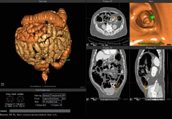 снимок КТ кишечника