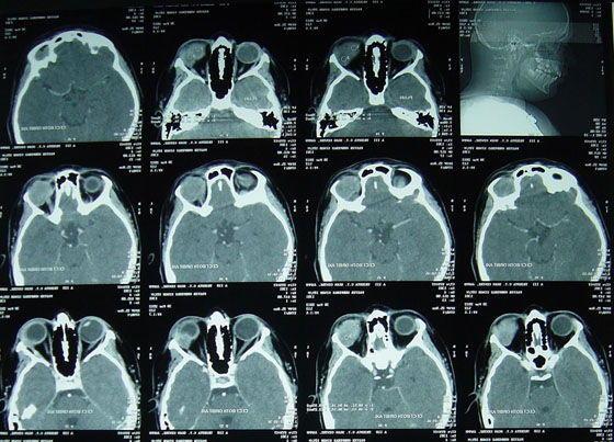 снимок КТ орбиты глаза и зрительных нервов