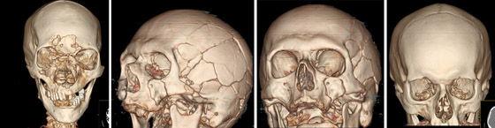 снимок кт черепа